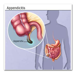 What is a appendix